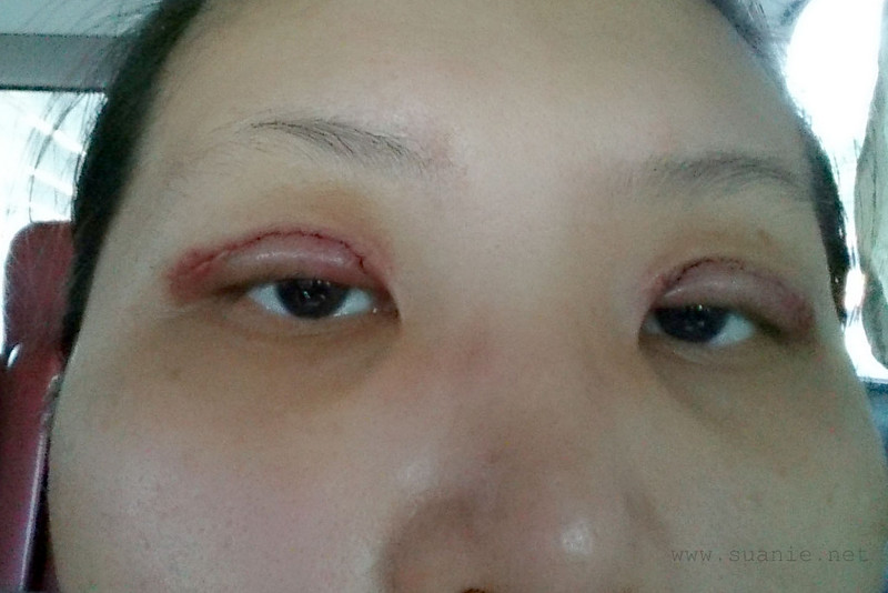 Suanie double eyelid surgery - Day 06