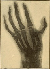 "Image from page 863 of ""A practical treatise on fractures and dislocations"" (1912)"