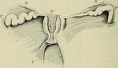 """Image from page 953 of """"Lehrbuch der speziellen pathologischen Anatomie für Studierende und Ärzte"""" (1907)"""