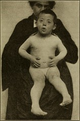 """Image from page 1308 of """"Medical diagnosis for the student and practitioner"""" (1922)"""