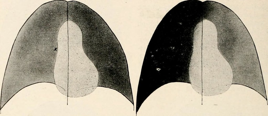 Image from page 345 of Southern medicine and surgery [serial] (1921)