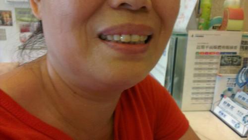 台中豐美牙醫診所-黃煜珉醫師的3D齒雕6