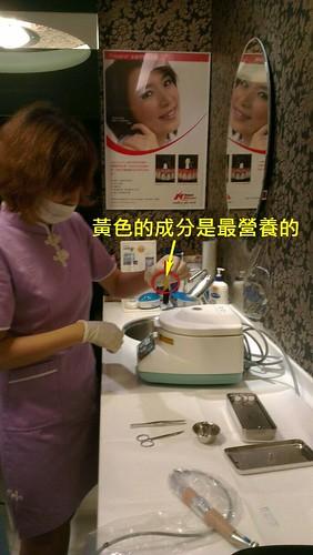 台中豐美牙醫診所-PRF 3D斷層植牙 傷口癒合快又好