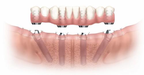 台中黃經理牙以診所黃院長植牙新技術:All-on-4 (5)