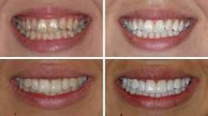 Yellow-teeth