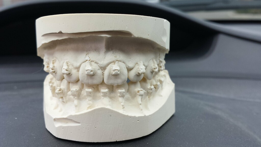 Cast for retainer. Just before braces removed.