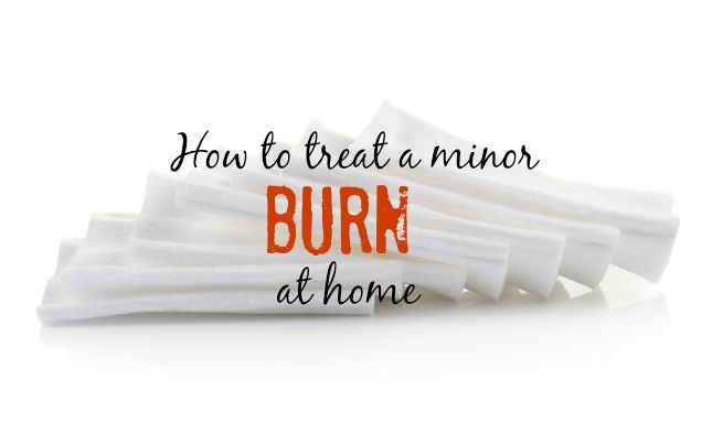 How to treat a minor burn at home