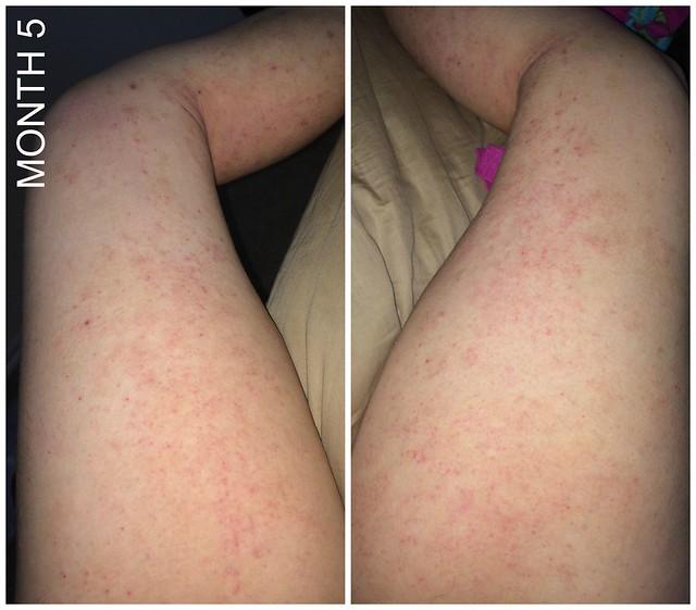 month 5 legs