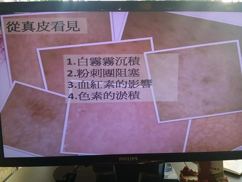 台中自然美大墩店SPA&肌膚檢測特殊器材介紹 (12)