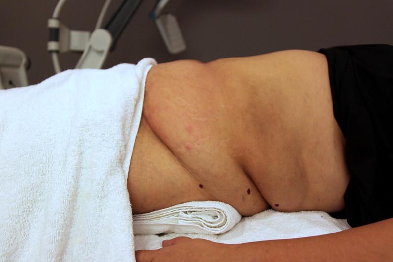 Vanquish procedure-006