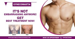 Tips for Gynecomastia Treatment or Male Breast Reduction in Delhi, India