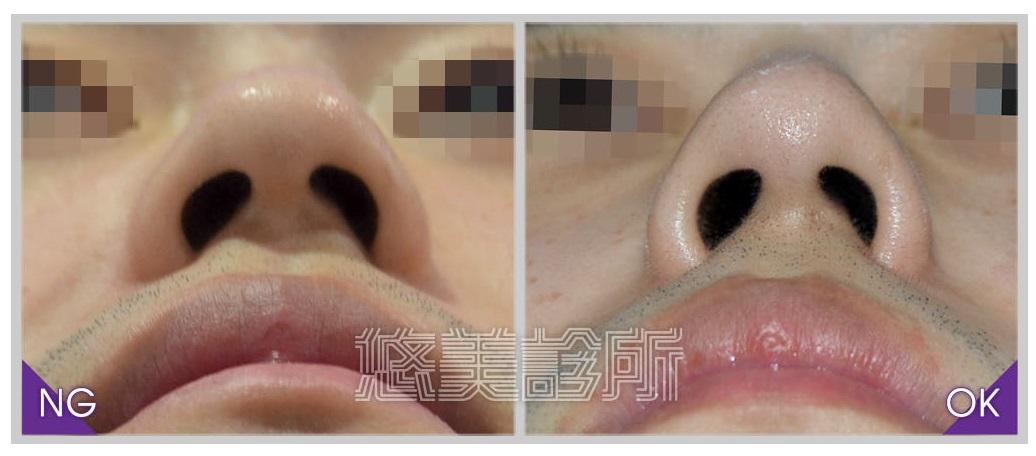 08_隆鼻_6.jpg