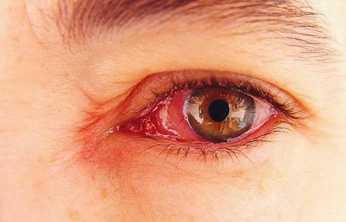 Obat Mata Gatal dan Merah Di Apotik