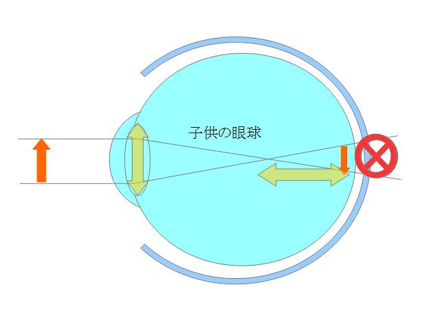 近視になるメカニズムを眼の構造から探るシリーズ02(成長期編)(6)