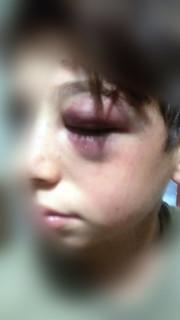 Rutigliano-Violenza e bullismo Aggredito da ignoti all'uscita da scuola  (4)