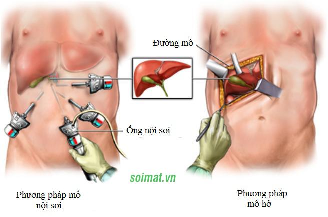 Phẫu thuật sỏi mật nội soi và phẫu thuật thường