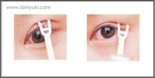 _Yuki scarless double eyelid centre for cosmetic rejuvenation surgery016001