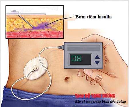 Bơm tiêm insulin để kiểm soát bệnh tiểu đường