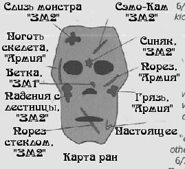 Карта ушибов