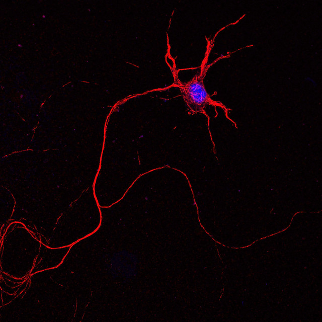 Mouse spinal cord neuron1
