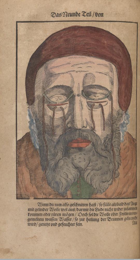 L0078611 Folio 186 verso, Bartisch, Ophthalmodouleia, 1583.