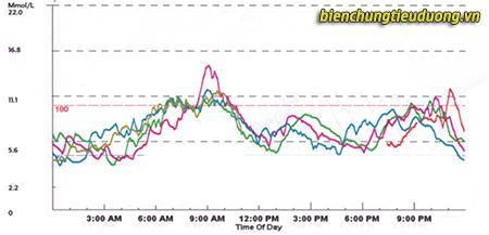 Biểu đồ ghi lại đường huyết trong đêm để tìm nguyên nhân gây tăng đường huyết