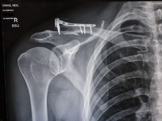 Fractured Clavicle - After