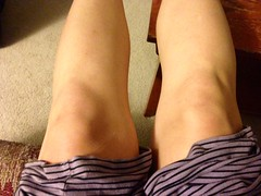 Sept. 11th knee selfie. Wish I were feeling more patriotic, but it rained and I'm getting that weird swelling below my left knee on the right side. Bleh.