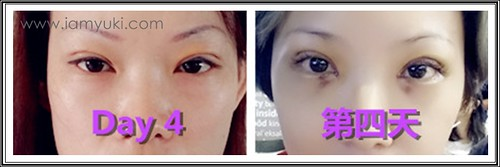 _Yuki scarless double eyelid centre for cosmetic rejuvenation surgery004001