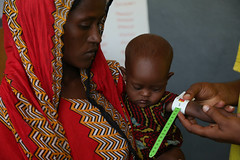 Abahina Humed's arm measurement shows that the child is acutely malnourished. He is taking treatment at Gewane Health Center, Afar region, Ethiopia.
