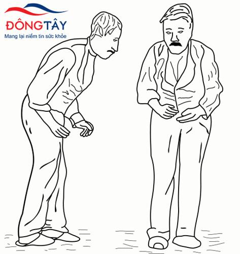 Xu hướng chúi người về trước – một triệu chứng vận động thường gặp ở bệnh Parkinson