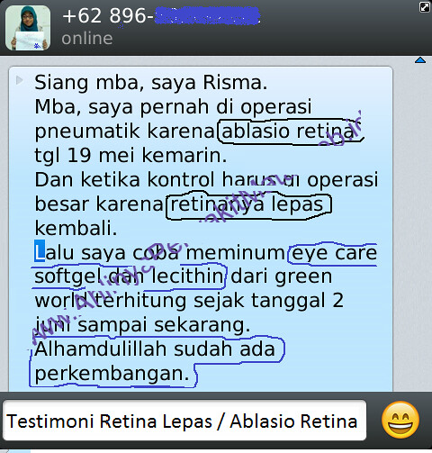 HARGA Eye Care Softgel