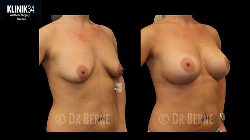 bröstlyft klinik34 facebook.020