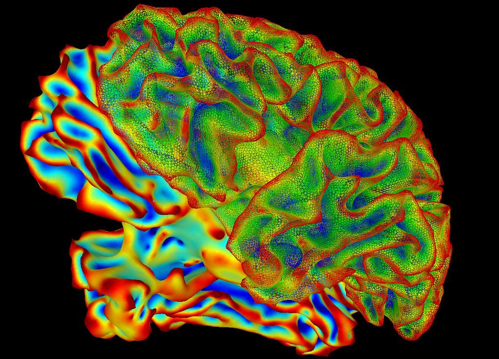 SumaLateral Whole Brain Image