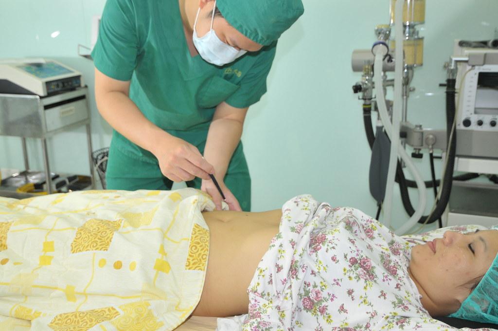 自己的臉自己救!推薦台北采醫漾麗診所自體脂肪豐頰 (4)