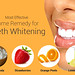 6 Effective Home Remedies for Teeth Whitening by Dentists Near Your Area UK