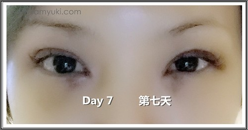 _Yuki scarless double eyelid centre for cosmetic rejuvenation surgery010001