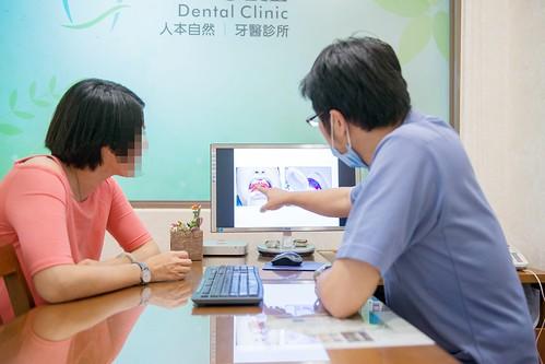 黃牙退散!到高雄人本自然牙醫診所做牙齒冷光美白還我一口自信白牙 (5)