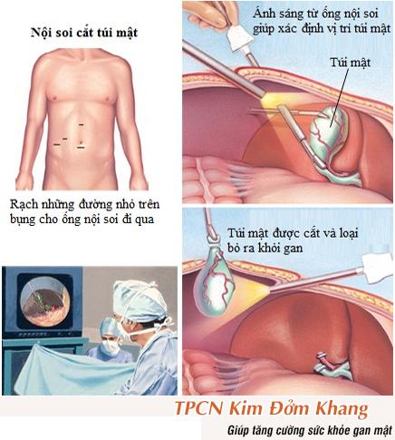 Cắt túi mật bằng phương pháp phẫu thuật nội soi.