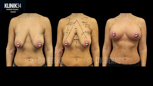 bröstlyft klinik34 facebook.012