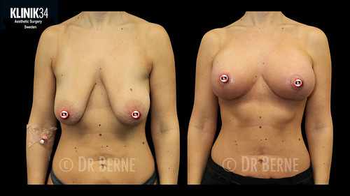 bröstlyft klinik34 facebook.011
