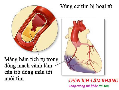 Tắc nghẽn động mạch vành gây thiếu máu cơ tim
