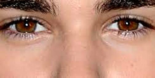 Ojos limpios