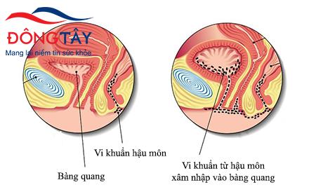 Người bệnh tiểu đường dễ bị vi khuẩn xâm nhập vào bàng quang gây nhiễm trùng đường tiểu