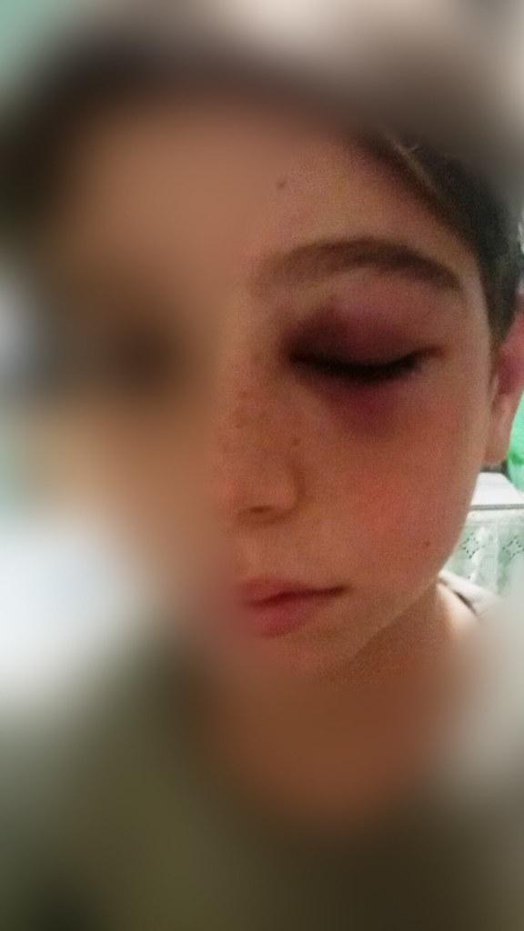 Rutigliano-Violenza e bullismo Aggredito da ignoti all'uscita da scuola  (1)