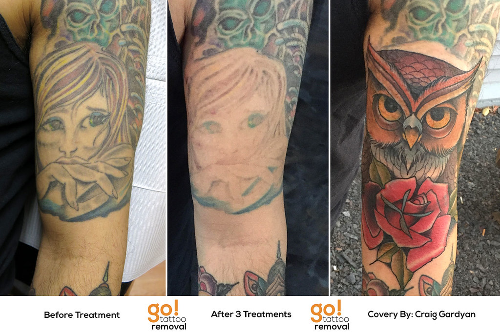 Tattoo removal to tattoo cover up go tattoo removal for Laser tattoo removal manhattan