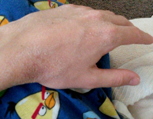 scaly crusty skin on hands