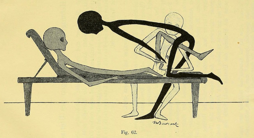 Gynecological Gymnastics from Outer Space (1895) – The