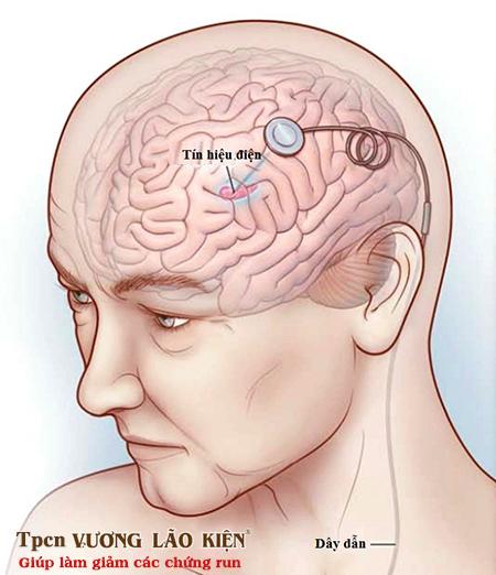 Phẫu thuật kích thích não sâu (DBS) trong điều trị rối loạn trương lực cơ