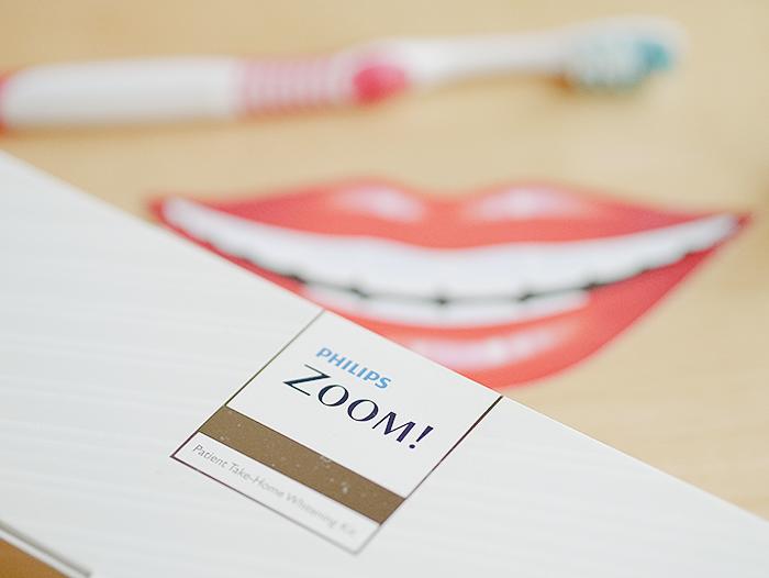 vitality dental teeth whitening edinburgh 2